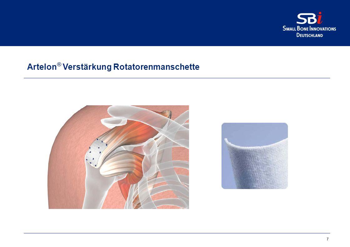 7 Artelon ® Verstärkung Rotatorenmanschette