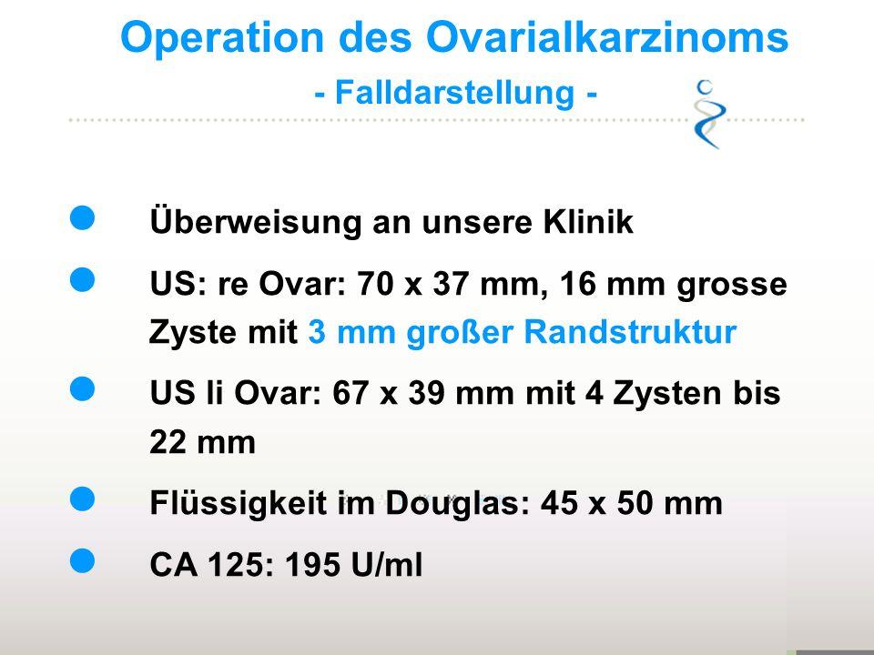 Operation des Ovarialkarzinoms - Falldarstellung - Überweisung an unsere Klinik US: re Ovar: 70 x 37 mm, 16 mm grosse Zyste mit 3 mm großer Randstrukt