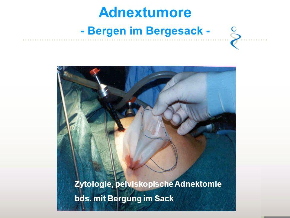 Adnextumore - Bergen im Bergesack - Zytologie, pelviskopische Adnektomie bds. mit Bergung im Sack