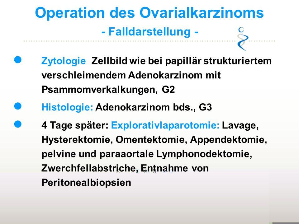 Operation des Ovarialkarzinoms - Falldarstellung - Zytologie: Zellbild wie bei papillär strukturiertem verschleimendem Adenokarzinom mit Psammomverkal