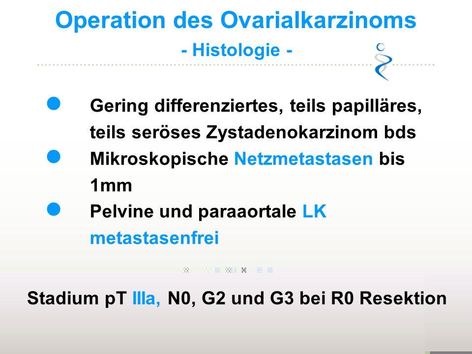 Operation des Ovarialkarzinoms - Histologie - Gering differenziertes, teils papilläres, teils seröses Zystadenokarzinom bds Mikroskopische Netzmetasta