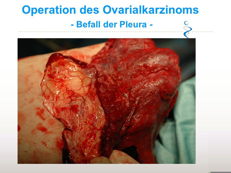 Operation des Ovarialkarzinoms - Befall Omentum minus -