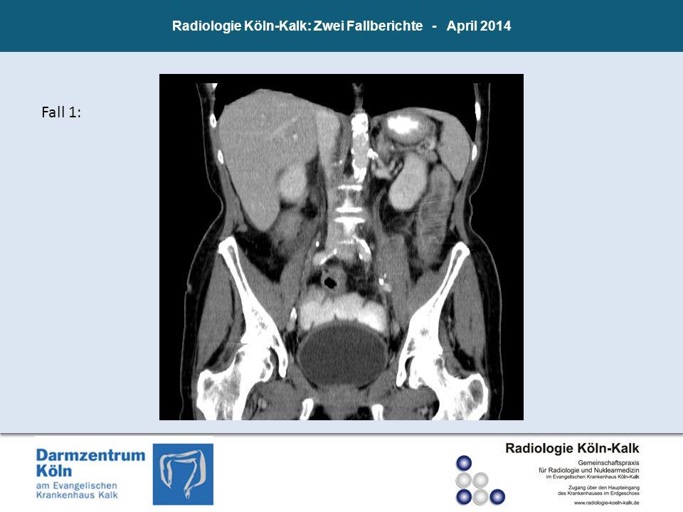 Radiologie Köln-Kalk: Zwei Fallberichte - April 2014 Fall 1: