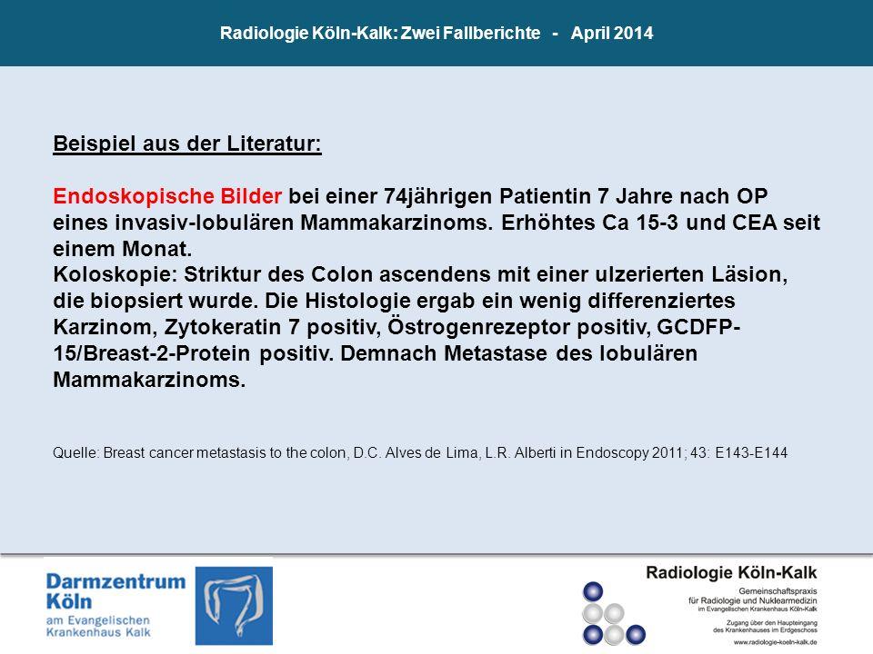 Radiologie Köln-Kalk: Zwei Fallberichte - April 2014 Beispiel aus der Literatur: Endoskopische Bilder bei einer 74jährigen Patientin 7 Jahre nach OP e
