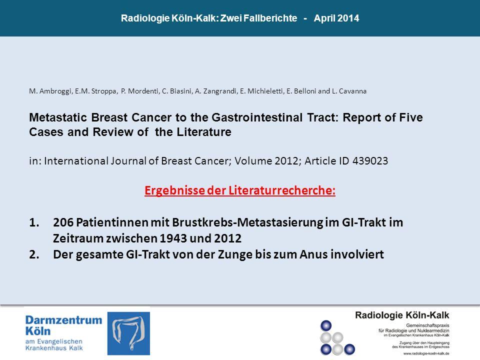 M. Ambroggi, E.M. Stroppa, P. Mordenti, C. Biasini, A. Zangrandi, E. Michieletti, E. Belloni and L. Cavanna Metastatic Breast Cancer to the Gastrointe