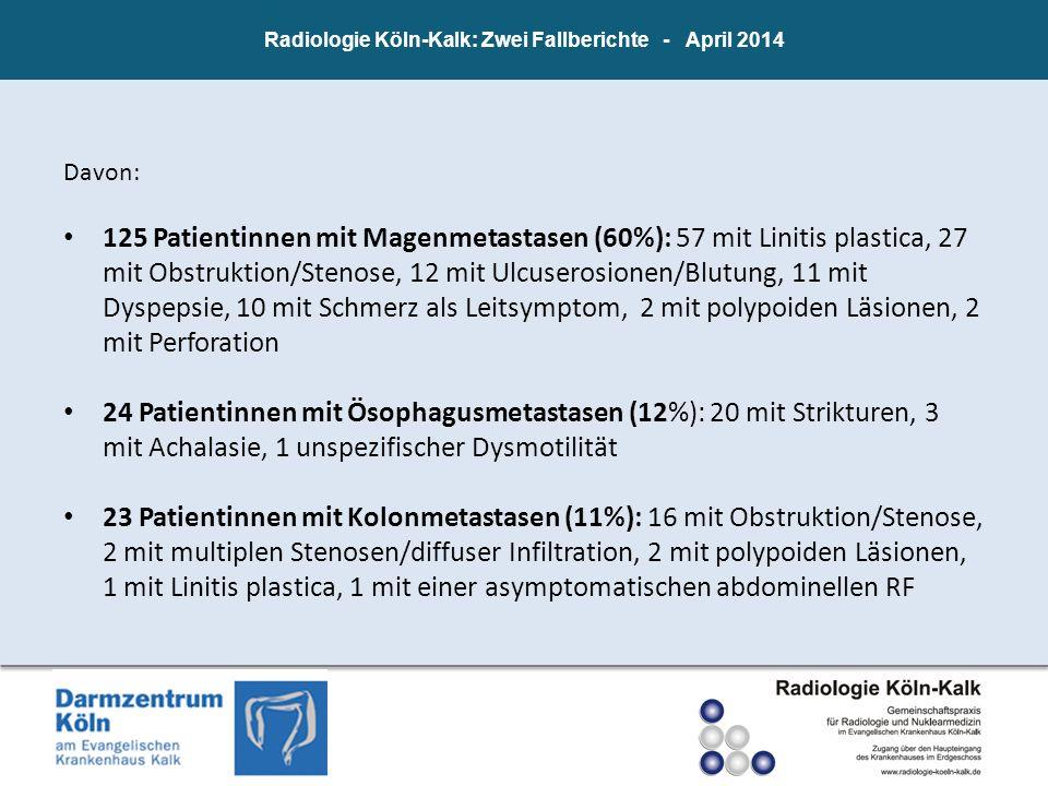 Radiologie Köln-Kalk: Zwei Fallberichte - April 2014 Davon: 125 Patientinnen mit Magenmetastasen (60%): 57 mit Linitis plastica, 27 mit Obstruktion/St