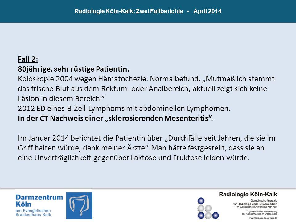 Radiologie Köln-Kalk: Zwei Fallberichte - April 2014 Fall 2: 80jährige, sehr rüstige Patientin. Koloskopie 2004 wegen Hämatochezie. Normalbefund. Mutm