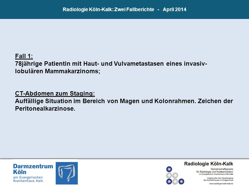 Radiologie Köln-Kalk: Zwei Fallberichte - April 2014 Fall 1: 78jährige Patientin mit Haut- und Vulvametastasen eines invasiv- lobulären Mammakarzinoms