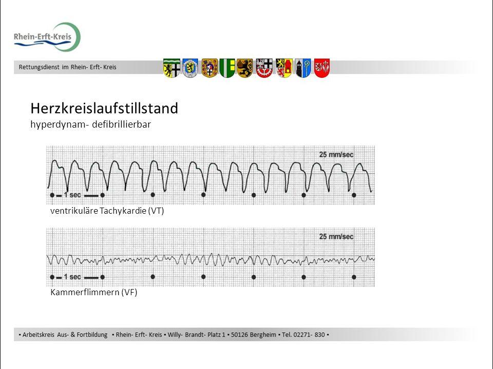 Herzkreislaufstillstand hyperdynam- defibrillierbar ventrikuläre Tachykardie (VT) Kammerflimmern (VF)