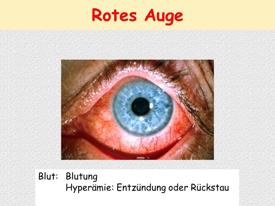 Rotes Auge Blut: Blutung Hyperämie: Entzündung oder Rückstau
