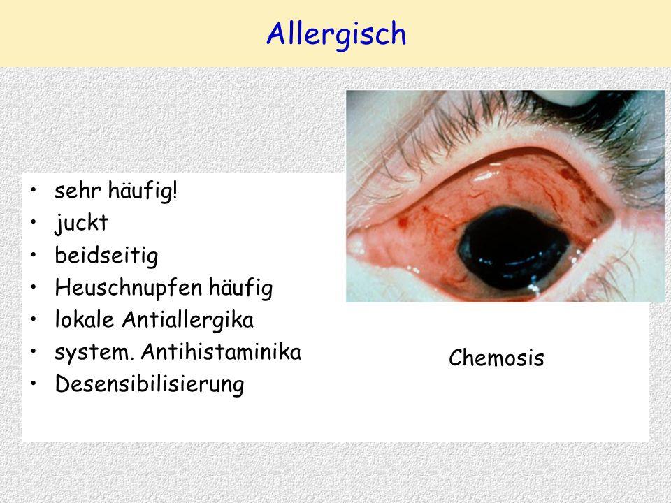 Allergisch sehr häufig! juckt beidseitig Heuschnupfen häufig lokale Antiallergika system. Antihistaminika Desensibilisierung Chemosis