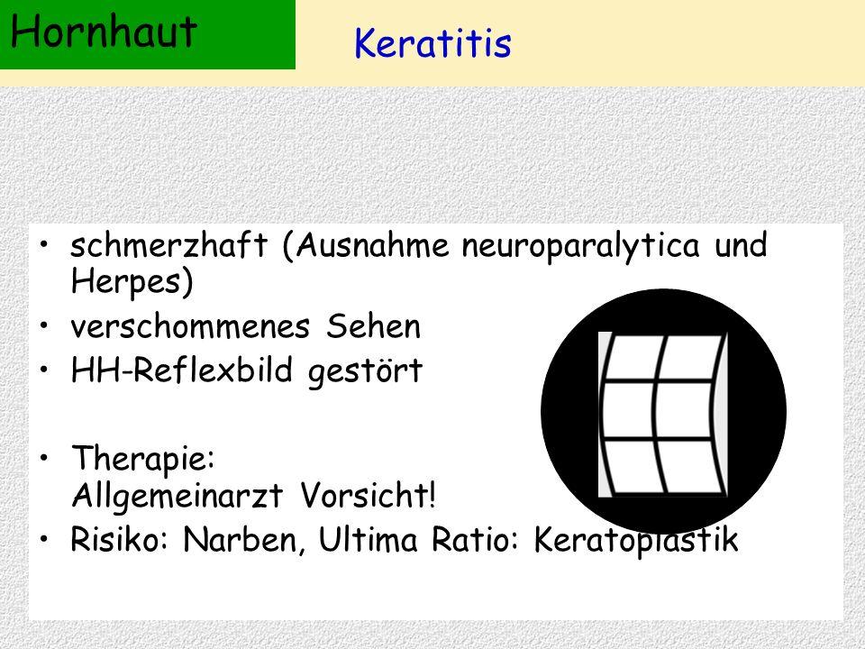 Keratitis schmerzhaft (Ausnahme neuroparalytica und Herpes) verschommenes Sehen HH-Reflexbild gestört Therapie: Allgemeinarzt Vorsicht! Risiko: Narben
