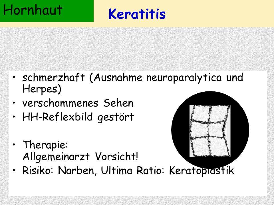 schmerzhaft (Ausnahme neuroparalytica und Herpes) verschommenes Sehen HH-Reflexbild gestört Therapie: Allgemeinarzt Vorsicht! Risiko: Narben, Ultima R