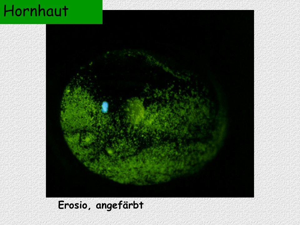 Erosio, angefärbt Hornhaut