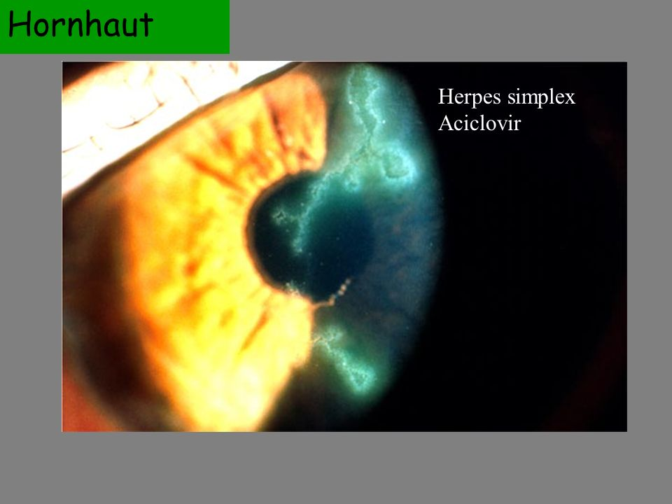 Herpes simplex Aciclovir Hornhaut