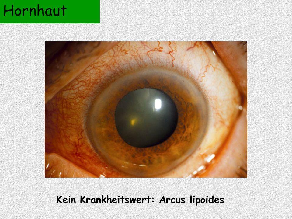 Kein Krankheitswert: Arcus lipoides Hornhaut