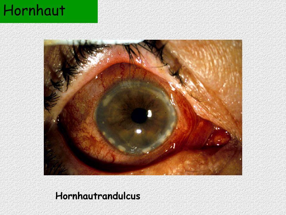 Hornhautrandulcus Hornhaut