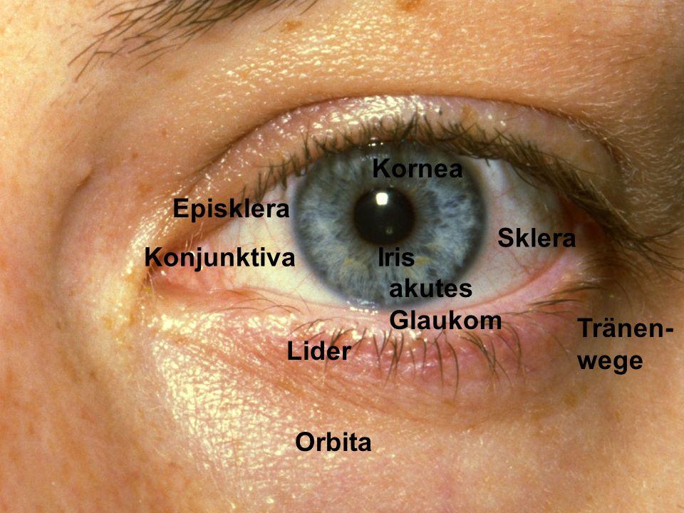 Lider KonjunktivaIris Sklera Orbita Tränen- wege Kornea akutes Glaukom Episklera