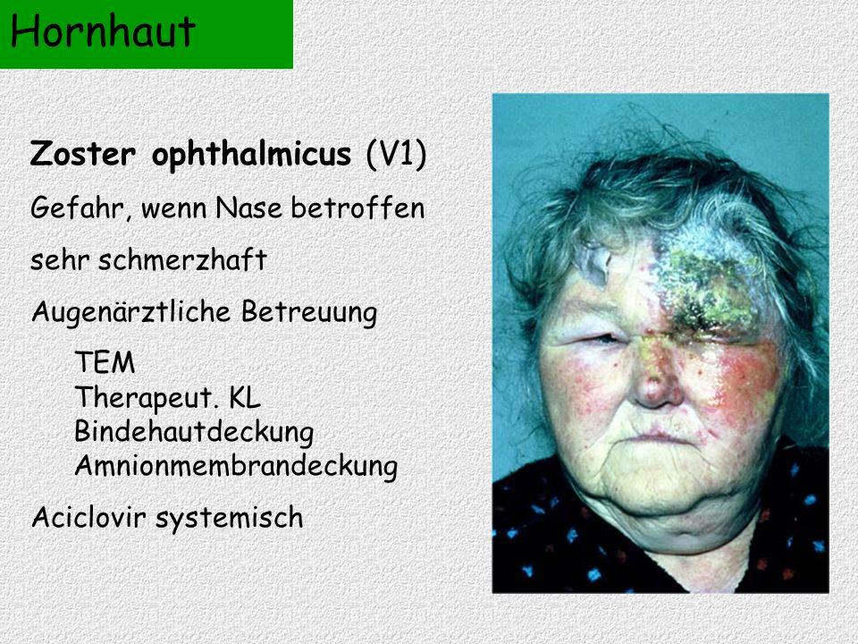 Zoster ophthalmicus (V1) Gefahr, wenn Nase betroffen sehr schmerzhaft Augenärztliche Betreuung TEM Therapeut. KL Bindehautdeckung Amnionmembrandeckung