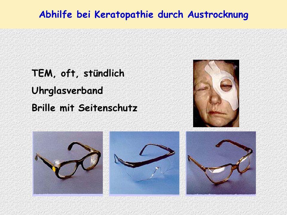 Abhilfe bei Keratopathie durch Austrocknung TEM, oft, stündlich Uhrglasverband Brille mit Seitenschutz