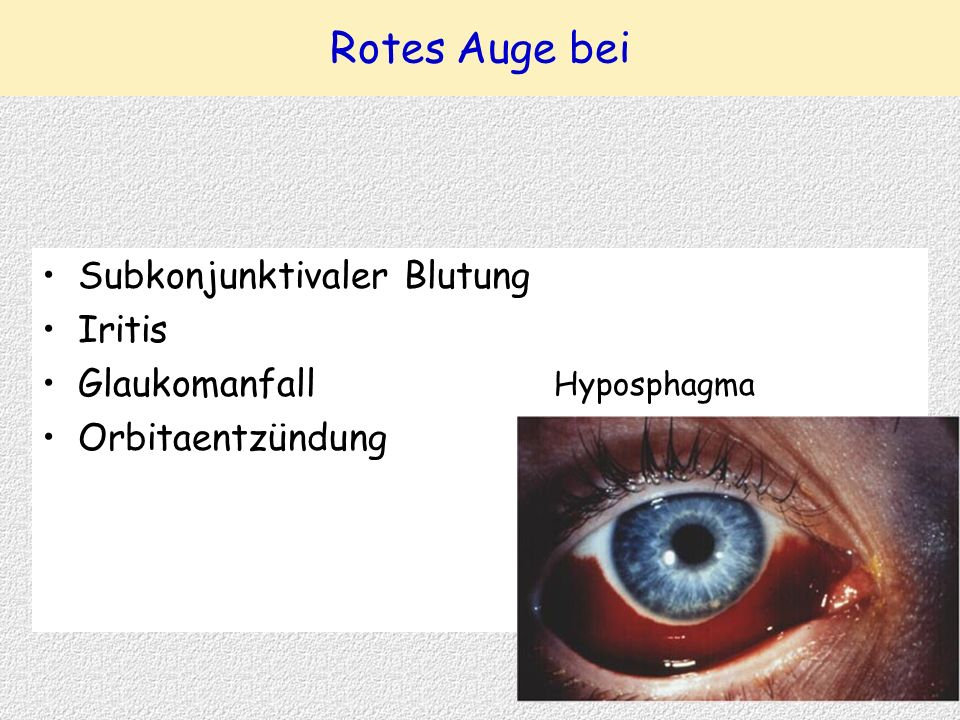 Rotes Auge bei Subkonjunktivaler Blutung Iritis Glaukomanfall Orbitaentzündung Hyposphagma