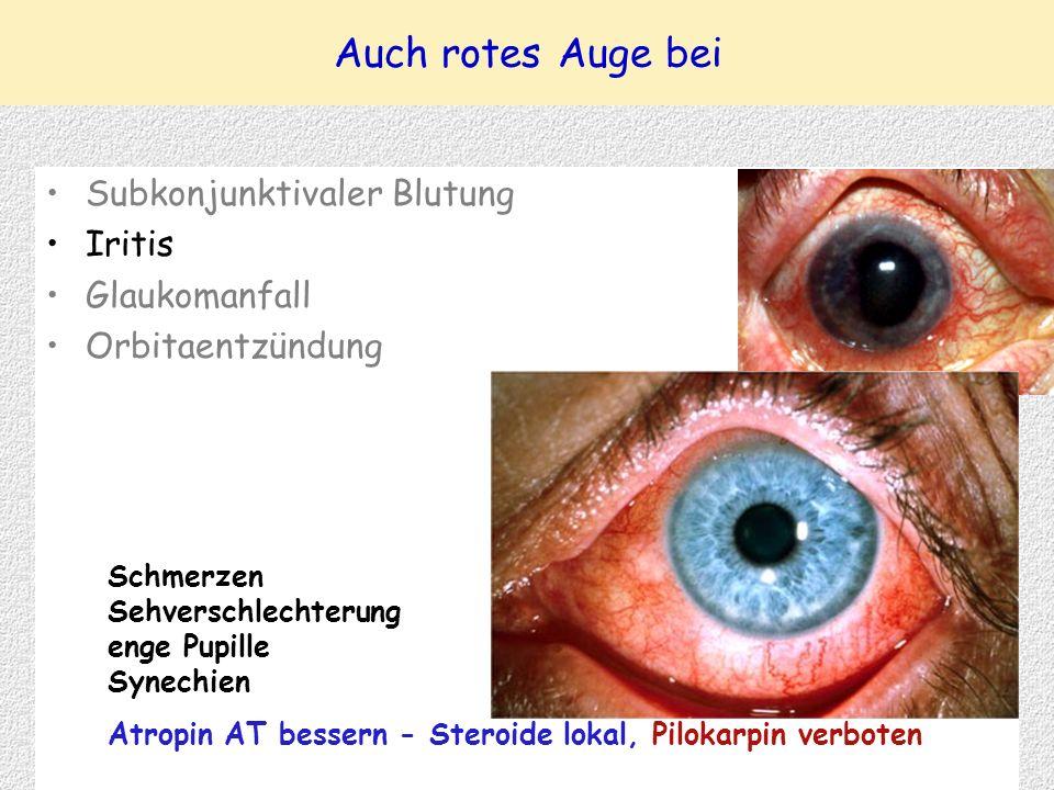 Auch rotes Auge bei Subkonjunktivaler Blutung Iritis Glaukomanfall Orbitaentzündung Schmerzen Sehverschlechterung enge Pupille Synechien Atropin AT bessern - Steroide lokal, Pilokarpin verboten