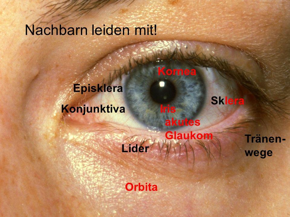 Lider KonjunktivaIris Sklera Orbita Tränen- wege Kornea akutes Glaukom Episklera Nachbarn leiden mit!