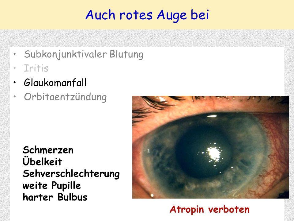Subkonjunktivaler Blutung Iritis Glaukomanfall Orbitaentzündung Auch rotes Auge bei Atropin verboten Schmerzen Übelkeit Sehverschlechterung weite Pupille harter Bulbus