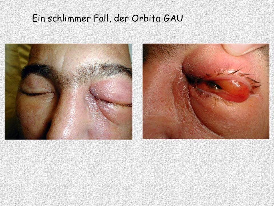 Ein schlimmer Fall, der Orbita-GAU