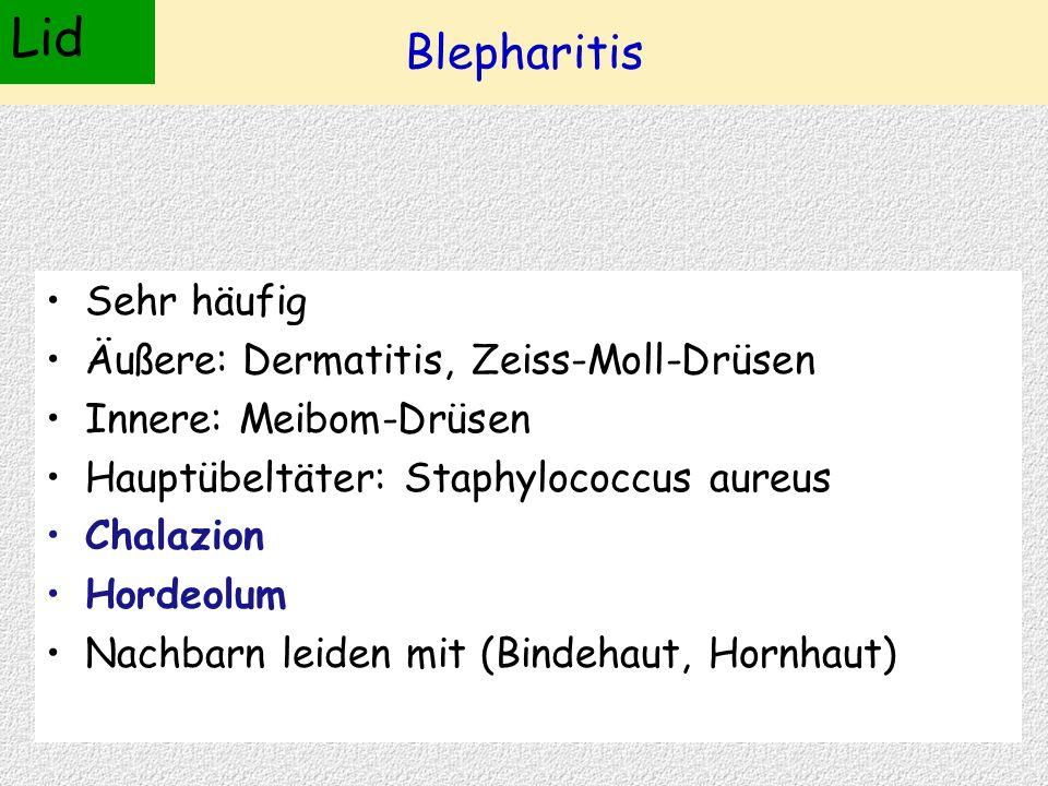Blepharitis Sehr häufig Äußere: Dermatitis, Zeiss-Moll-Drüsen Innere: Meibom-Drüsen Hauptübeltäter: Staphylococcus aureus Chalazion Hordeolum Nachbarn