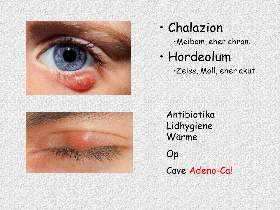 Chalazion Meibom, eher chron. Hordeolum Zeiss, Moll, eher akut Antibiotika Lidhygiene Wärme Op Cave Adeno-Ca!