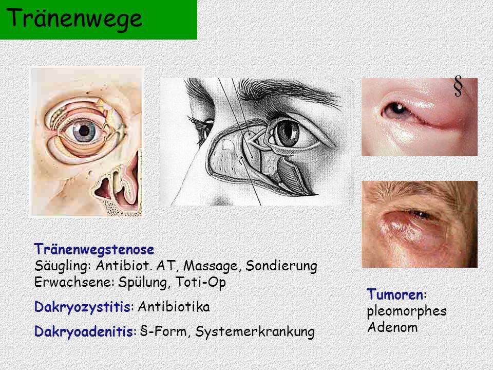 Tränenwege Tränenwegstenose Säugling: Antibiot. AT, Massage, Sondierung Erwachsene: Spülung, Toti-Op Dakryozystitis: Antibiotika Dakryoadenitis: §-For