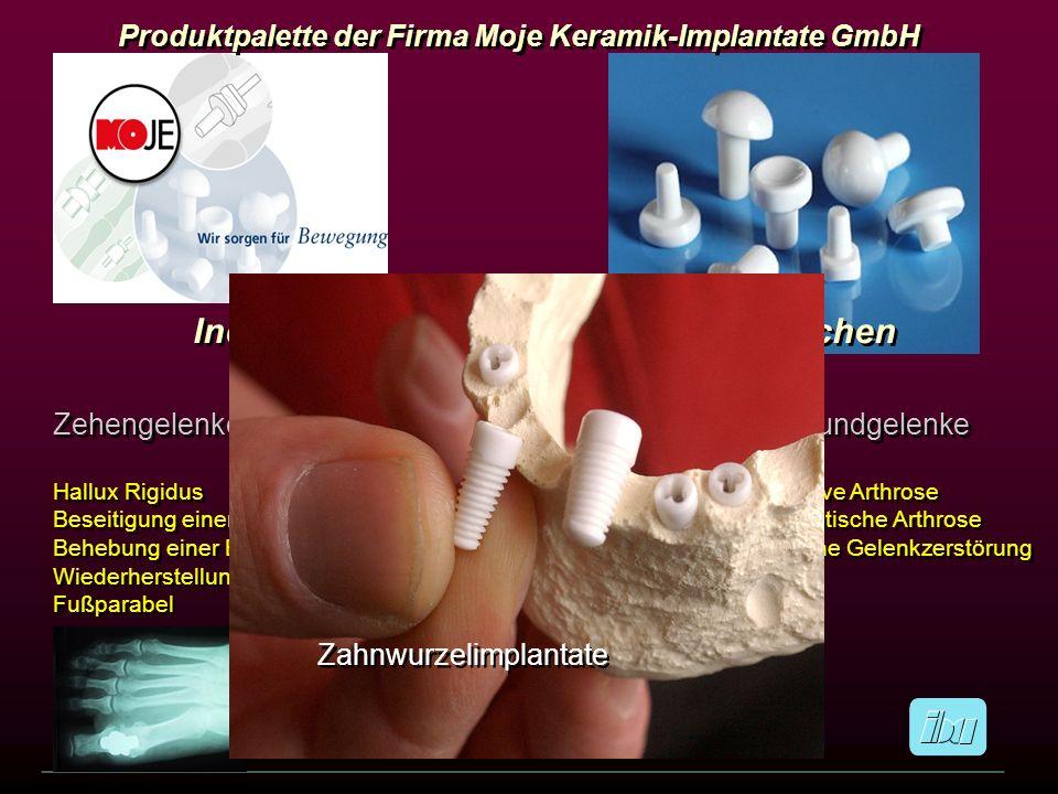 Fingermittelgelenke Degenerative Arthrose Posttraumatische Arthrose Entzündliche Gelenkzerstörung Fingermittelgelenke Degenerative Arthrose Posttrauma