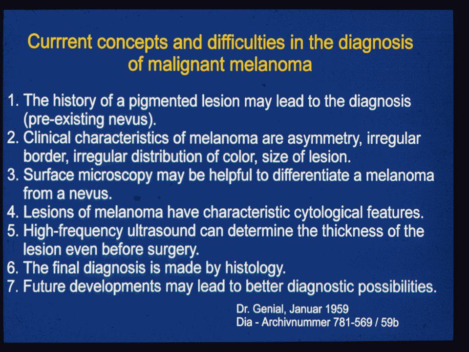 Diagnose des malignen Melanoms Anamnese Klinisches Bild Auflichtmikroskopie Zytologie Sonographie Histologie