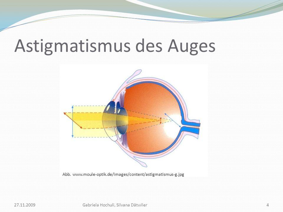Astigmatismus Regelmässiger Astigmatismus Ast.mit der Regel (rectus) Ast.
