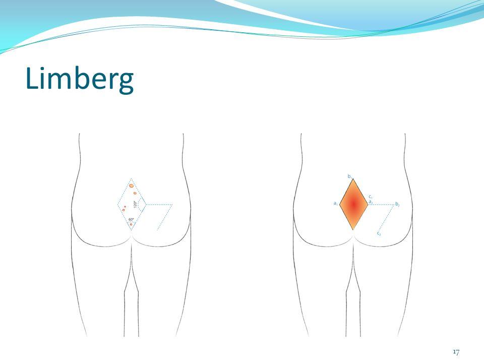 Limberg 17