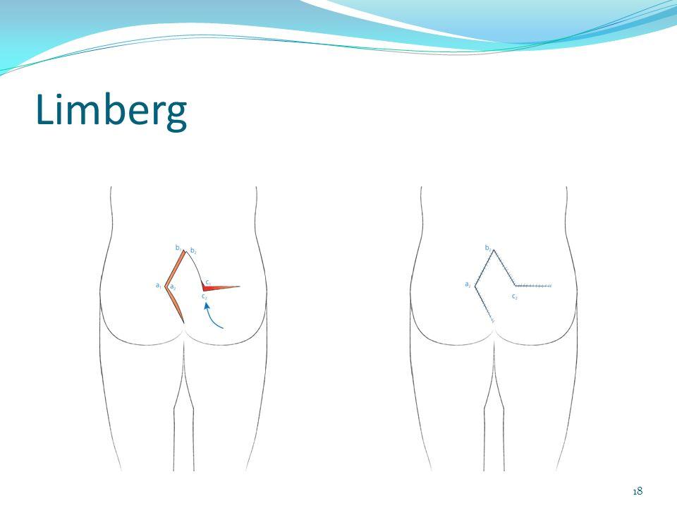 Limberg 18