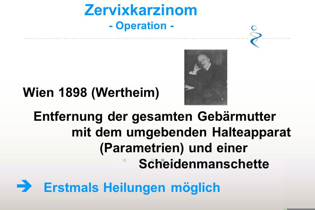 Zervixkarzinom - Operation - Wien 1898 (Wertheim) Entfernung der gesamten Gebärmutter mit dem umgebenden Halteapparat (Parametrien) und einer Scheiden