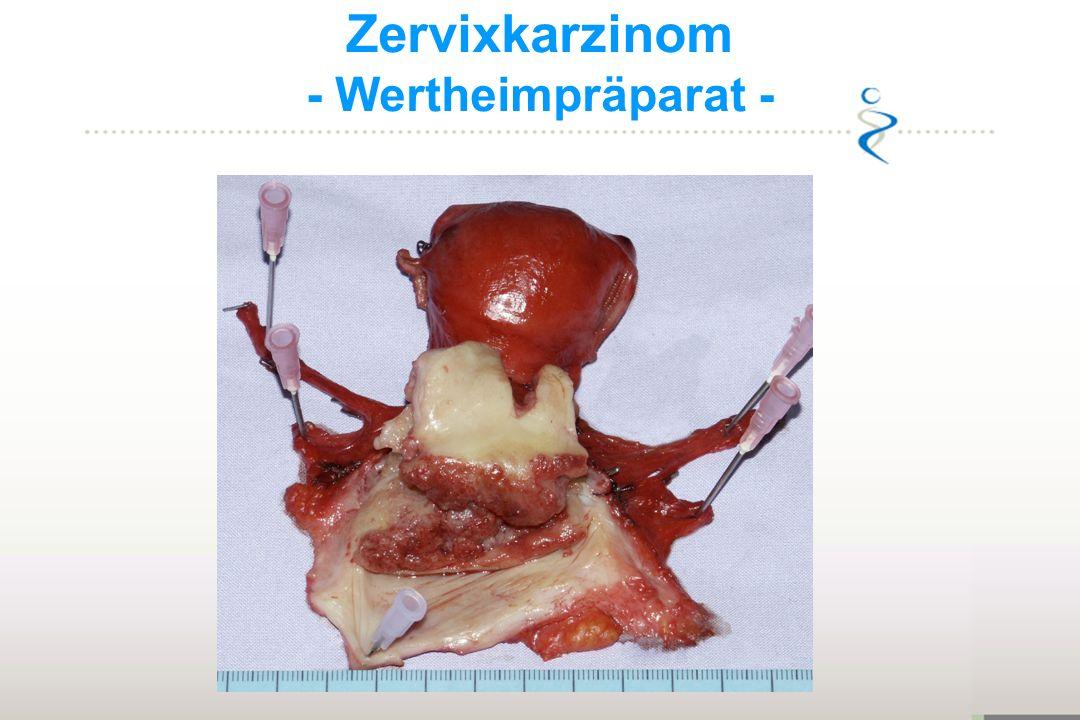 Zervixkarzinom - Wertheimpräparat -