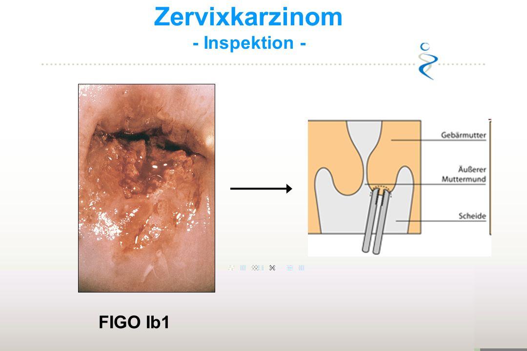 Zervixkarzinom - Inspektion - FIGO Ib1