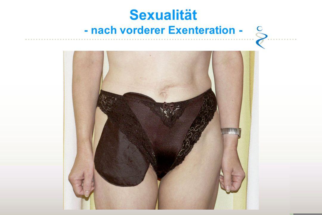 Sexualität - nach vorderer Exenteration -