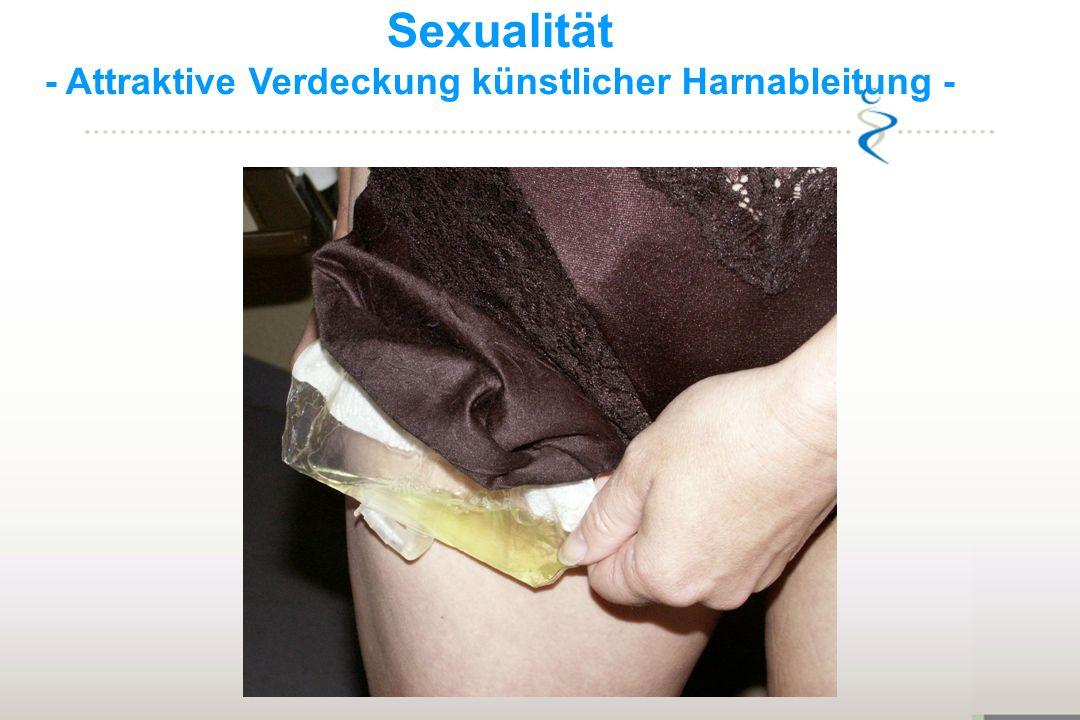 Sexualität - Attraktive Verdeckung künstlicher Harnableitung -