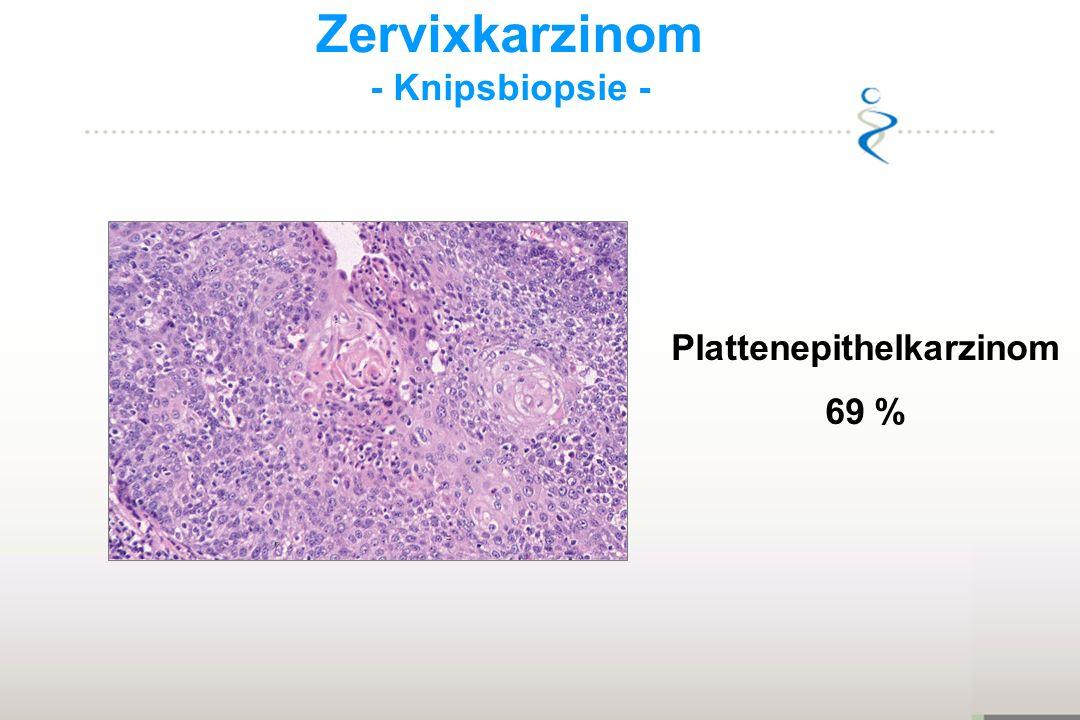 Zervixkarzinom - Knipsbiopsie - Plattenepithelkarzinom 69 %
