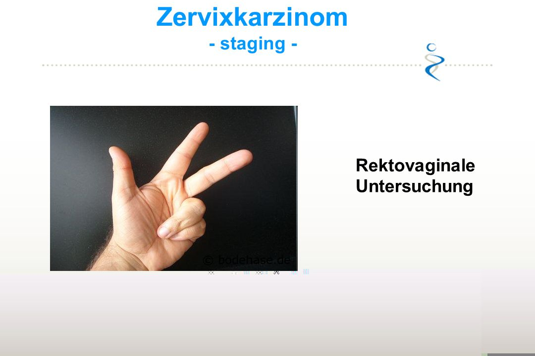 Zervixkarzinom - staging - Rektovaginale Untersuchung