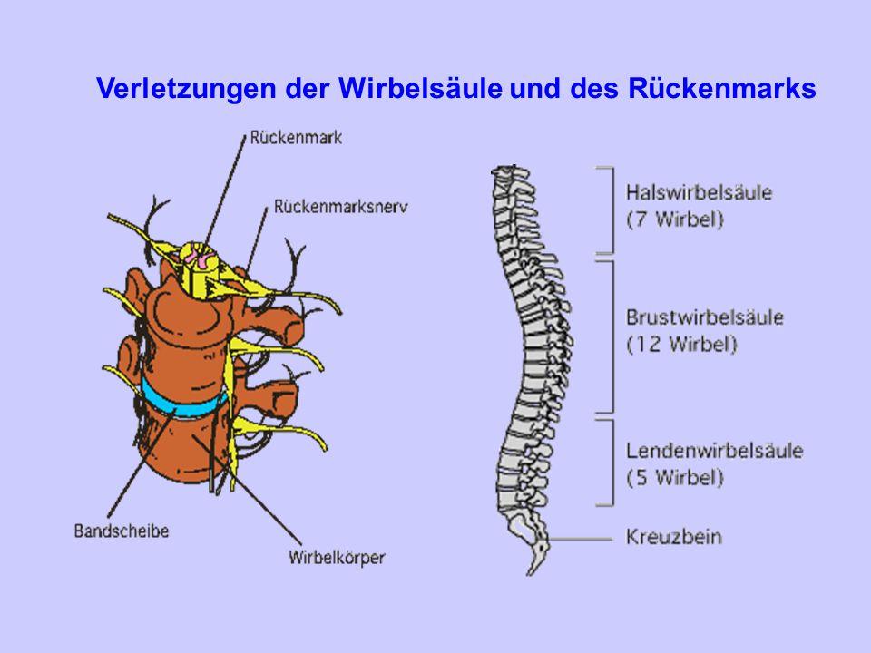 Tumoren des Rückenmarks extradural: z.B: Sarkome intradural: Neurinome, Meningeome intramedullär: Gliome Metastasen Angiome seltener als Hirntumoren benigne 10x häufiger als maligne meist > 50.LJ