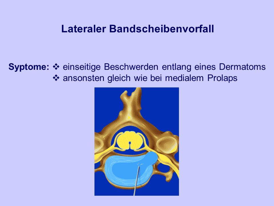 Lateraler Bandscheibenvorfall Syptome: einseitige Beschwerden entlang eines Dermatoms ansonsten gleich wie bei medialem Prolaps