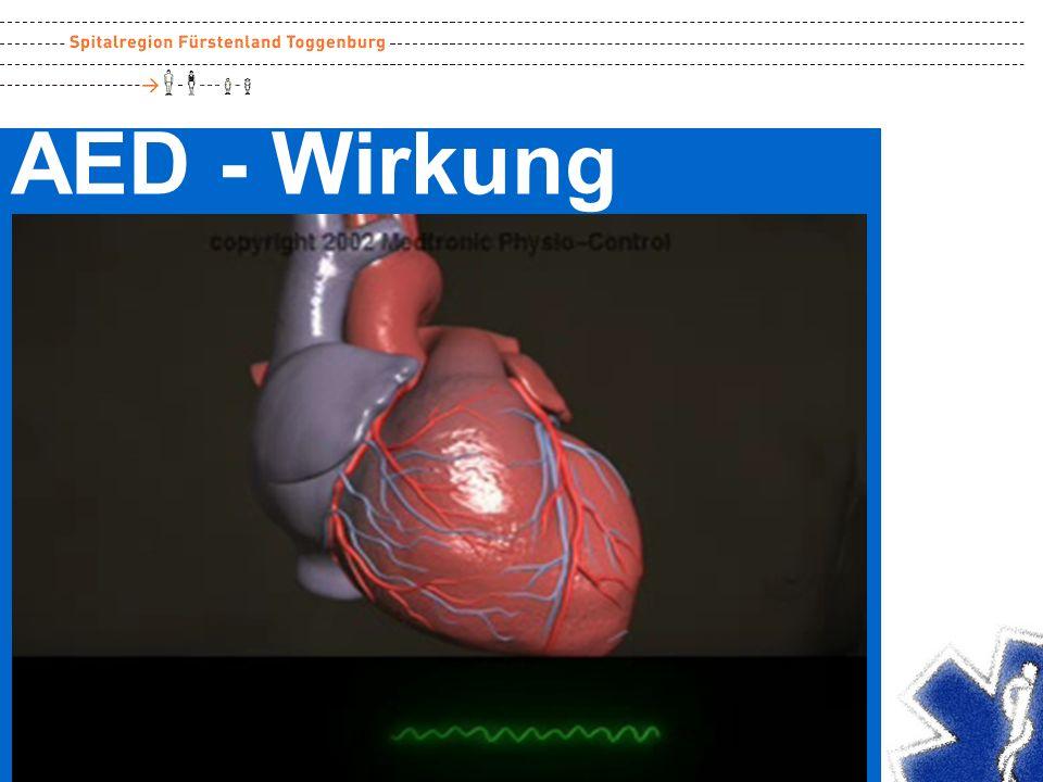 Neustart Der elektrische Stromstoss quer durch das Herz bewirkt einen Neustart der Impulse.