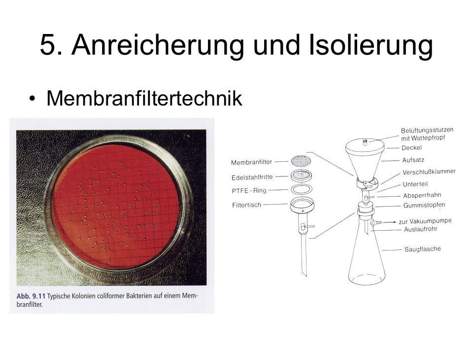 5. Anreicherung und Isolierung Membranfiltertechnik