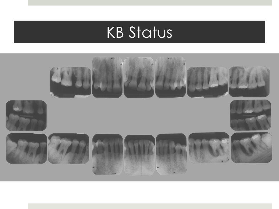 KB Status