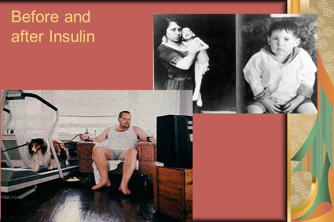 © 2004, John Walsh, P.A., C.D.E. Before and after Insulin